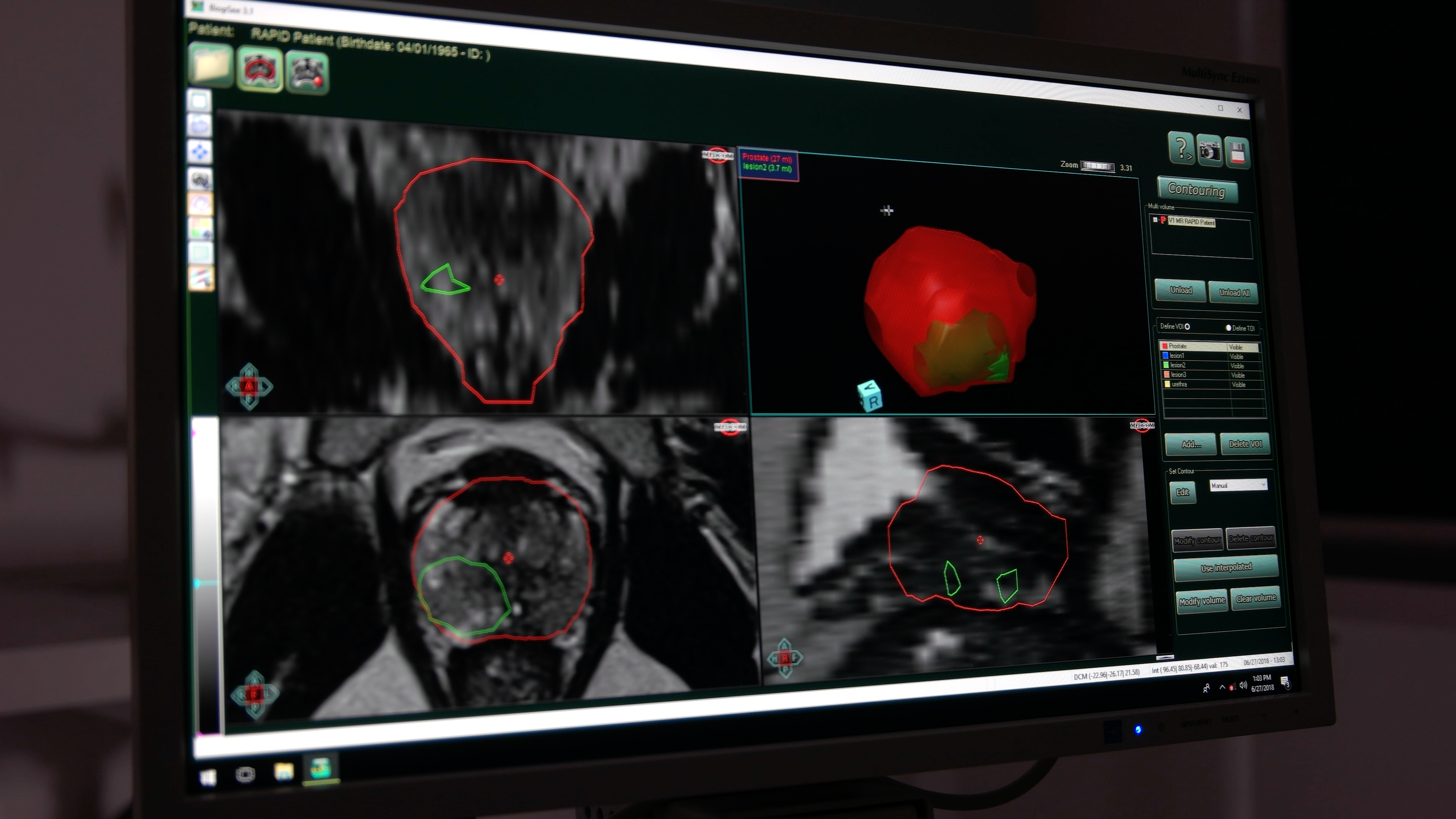 Fusion biopsy images showing prostate lesions